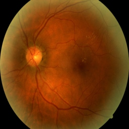 Healthy eye image.